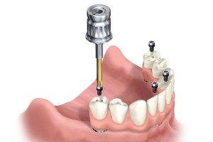 Tecnica di implantologia all on four